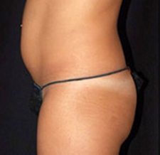 Before-ABDOMEN - Cryolipolyse sur l'abdomen par Coolsculpting