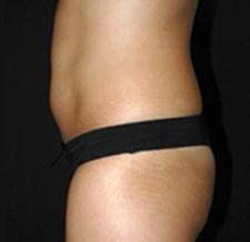 After-ABDOMEN - Cryolipolyse sur l'abdomen par Coolsculpting