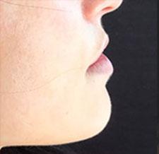 Before-BOUCHE - La bouche encore et toujours