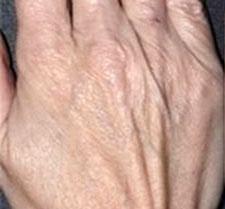 Before-ACIDE HYALURONIQUE - Rajeunissement des mains