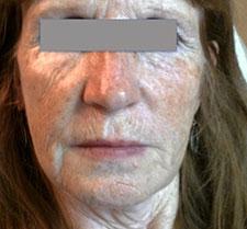 Before-INJECTIONS&PEELING -  Rajeunissement visage et cou