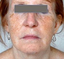 After-INJECTIONS&PEELING -  Rajeunissement visage et cou