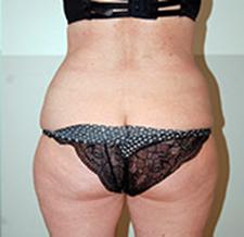 After-SILHOUETTE Correction de la silhouette par Coolsculpting Cryolipolyse sur les poignées d'amour et l'abdomen