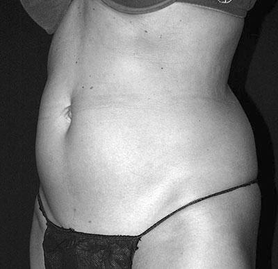 Before-Cryolipolyse sur l'abdomen par Coolsculpting
