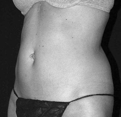After-Cryolipolyse sur l'abdomen par Coolsculpting