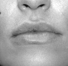 After-BOUCHE - Définition subtile du volume de la bouche grâce à l'acide hyaluronique