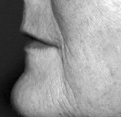 Before-Injection d'acide hyaluronique pour la bouche