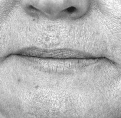 Before-BOUCHE - Révision du volume de la bouche grâce à l'acide hyaluronique