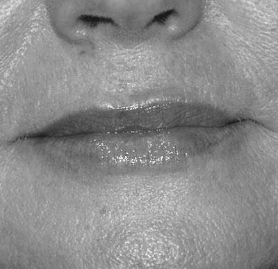 After-BOUCHE - Révision du volume de la bouche grâce à l'acide hyaluronique