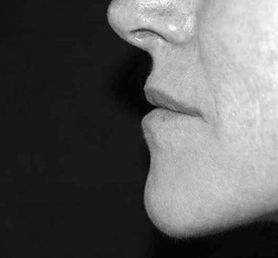 Before-Injection des lèvres