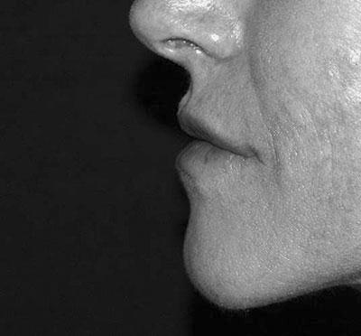 After-Injection des lèvres