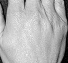 After-ACIDE HYALURONIQUE - Rajeunissement des mains