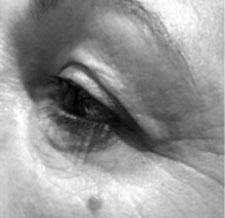 Before-PLEXR - Rajeunissement des paupières supérieures et inférieures