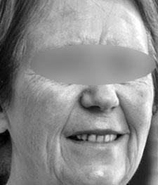 Before-RAJEUNISSEMENT VISAGE - Peeling Moyen à l'acide trichloracétique