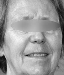 After-RAJEUNISSEMENT VISAGE - Peeling Moyen à l'acide trichloracétique