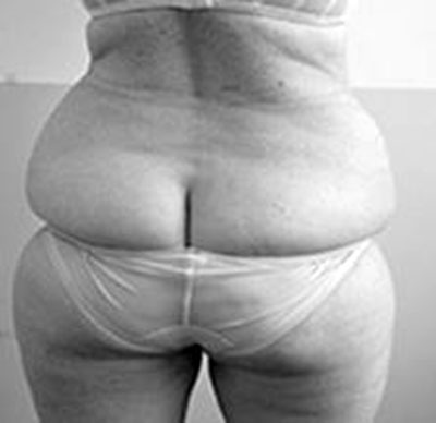 Before-Cryolipolyse COOLSCULPTING pour sculpter la silhouette