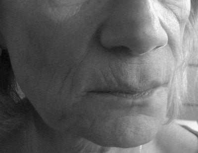 Before-Volume du visage