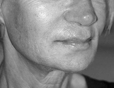 After-Volume du visage